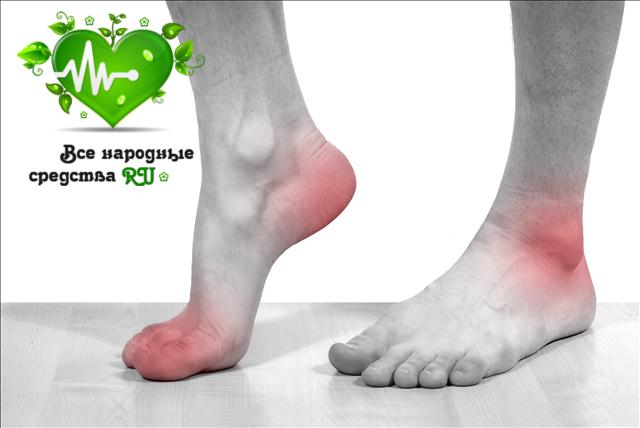 podagra-prichiny-simptomy-lechenie-2