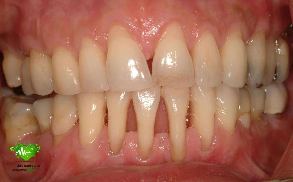 parodontoz-lechenie-narodny-mi-sredstvami-prichiny-vozniknoveniya-simptomy-001