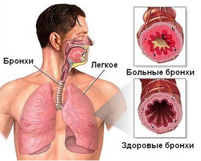 bronhit-4