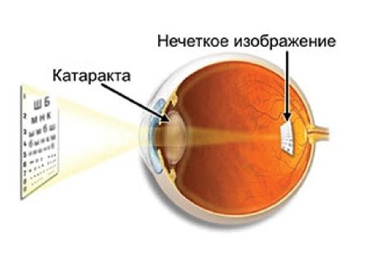 katarakta-lechenie-narodny-mi-sredstvami-002