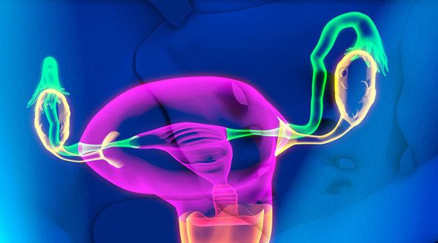 киста яичника лечение без операции